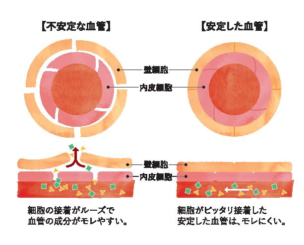 血管のゴースト化